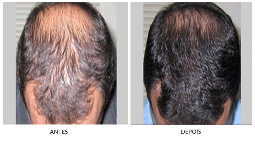 tratamentos faciais masculinos