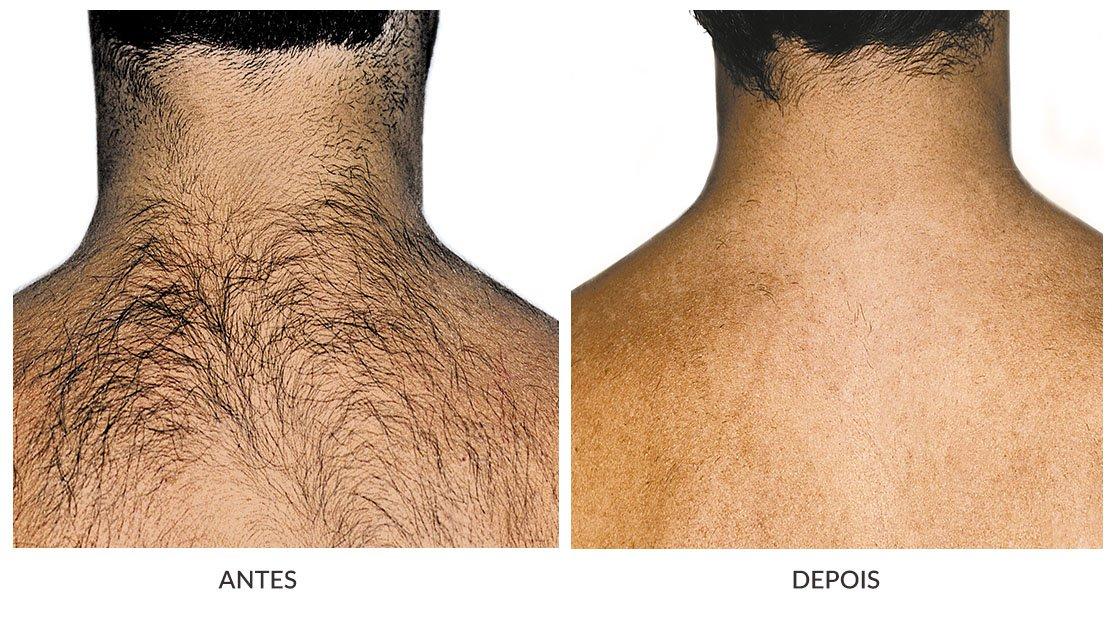 Além da consulta dermatológica, disponibilizamos o Laser Capilar LLLT (Low-level laser therapy). É indolor e funciona aumentando o fluxo sanguíneo no couro cabeludo, trazendo nutrientes e oxigênio que ajudam no crescimento dos fios.