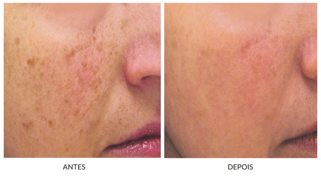 tratamentos faciais femininos
