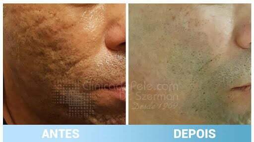 cicatriz de acne antes e depois