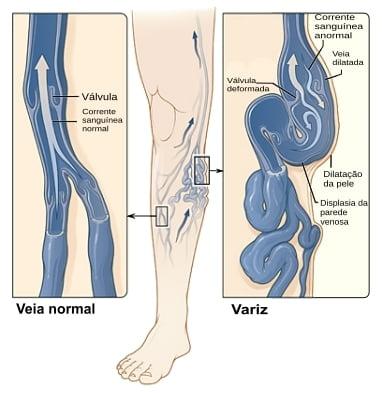 Varizes: Entenda o que são e como tratar varizes