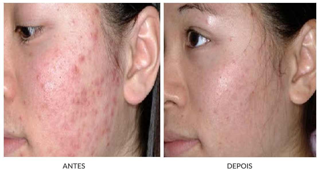 laser de co2 para cicatriz de acne antes e depois