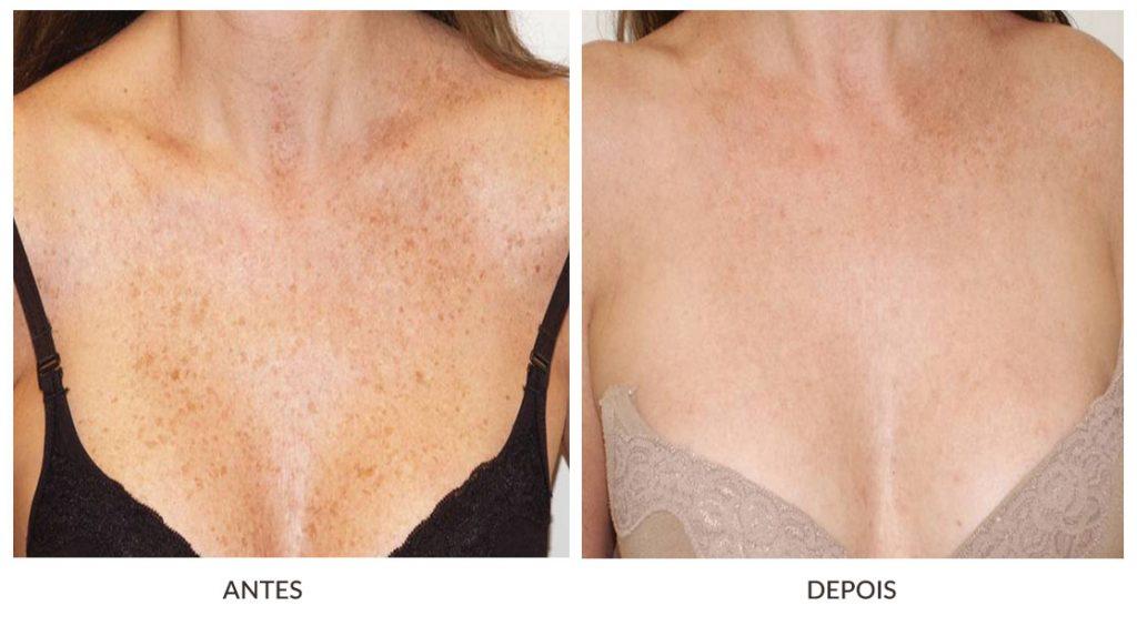 antes e depois manchas