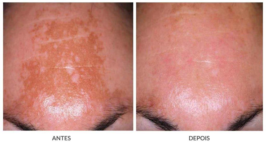 antes e depois de  melasma