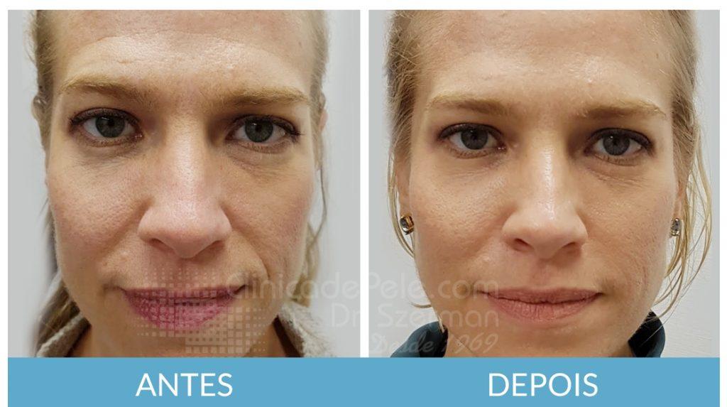 Resultados do Preenchimento e Harmonização facial