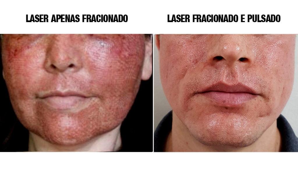 pós laser de co2 antes e depois