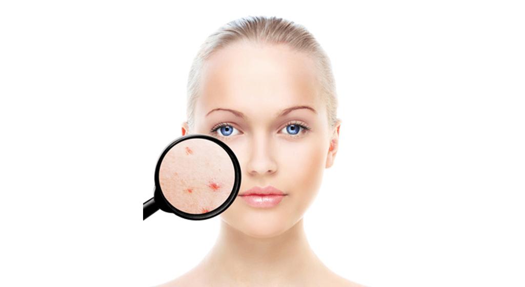 cicatrizes de acne