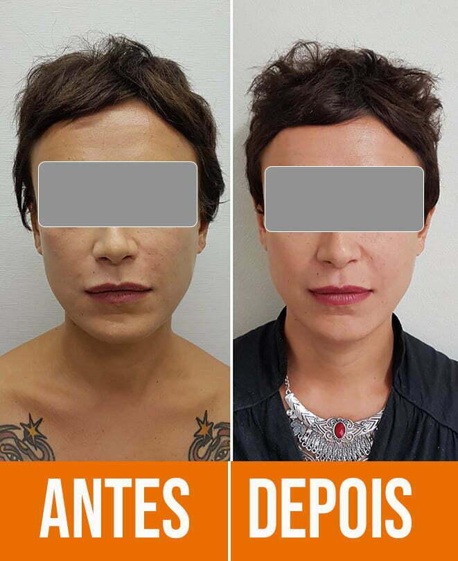 harmonização facial antes e depois